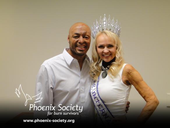 JR Martinez speaks at the Phoenix Society's World Burn Congress